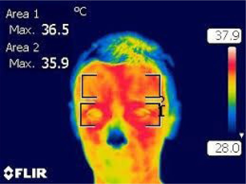 smart thermview